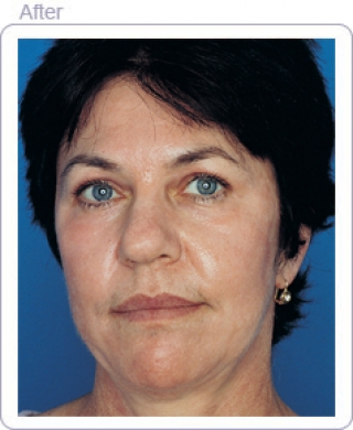 Blue facial peel