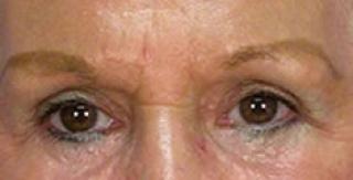 Eyelid Surgery Blepharoplasty Cost Prices Zeelcom Treatment 2015 ...
