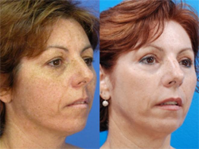 Facial tightening yag laser