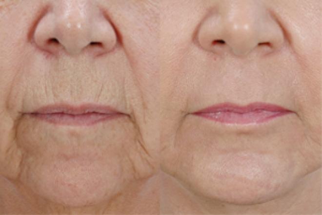 Skin Tightening Amp Resurfacing Pictures Zeel Com Before