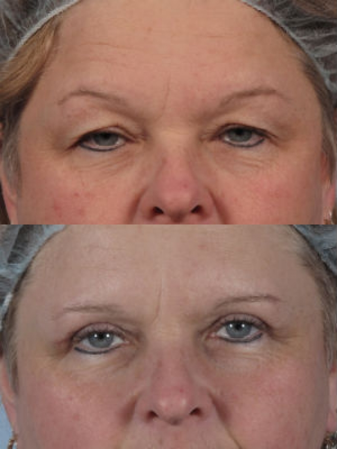 Before and after eyelid surgery photos blepharoplasty for Red lake fishing report hillman s