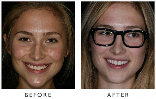 before and after porcelain veneers before and after porcelain veneersVeneers