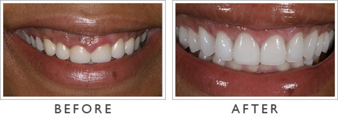 Apologise, but, photos shaved teeth for porceline veneers phrase... super